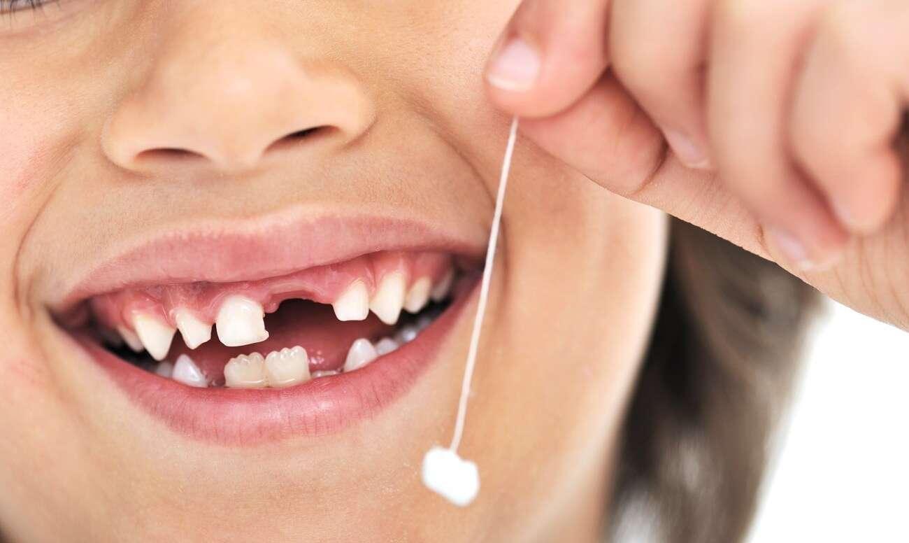Ученые: Молочные зубы могут спасти ребенка отмногих заболеваний