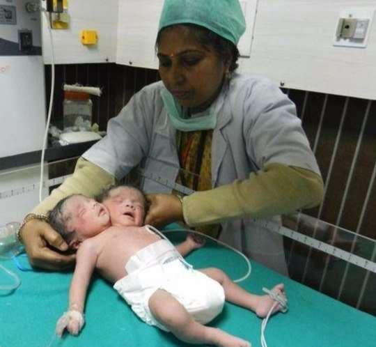 ВМексике родился двухголовый ребенок